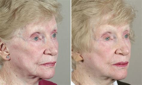 Glycolic chemical peel at home
