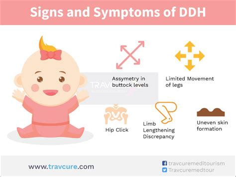 Buy signs of hip dysplasia in infants