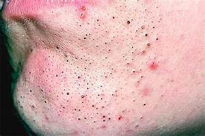 What Is The Difference Between Blackheads And Whiteheads