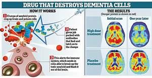 Revolutionary drug 'may stop Alzheimer's disease from ...