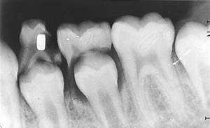 Unusual foreign body detected on routine dental radiograph - Archives of Disease in Childhood  Child Dental Health Teeth
