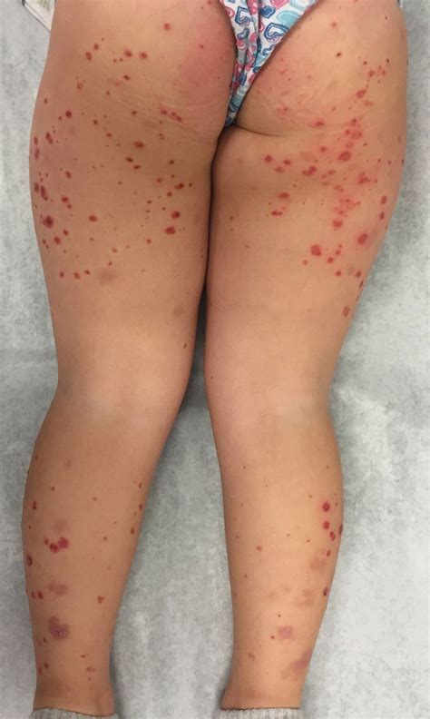 A 4 Year Old Girl Presents With Reddish Purple Lesions On