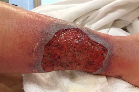 derm dx  healing ulcer   leukemia