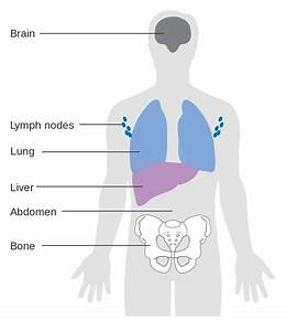 File Diagram Showing The Most Common Places For Melanoma