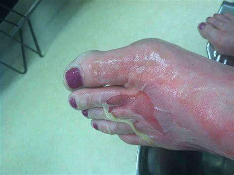 2nd-Degree Burns: Photos, Causes, Treatment