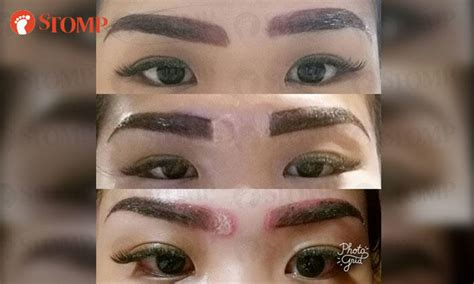 woman disfigured    home based eyebrow