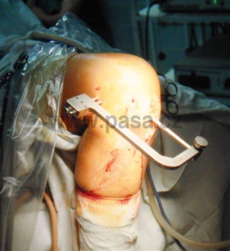 Cviky po operaci kolene