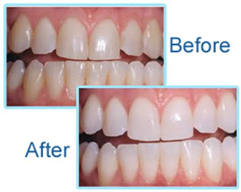 teeth whitening led light side effects oral treatments and dental health cosmetic dentistry