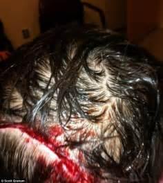 teenager wakes    wolf chomping  head
