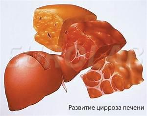 Лекарство для печени от гепатита с