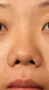 Common Aesthetic Concerns Seen In The Asian Nose  Part 1  The Low Bridge  Under Projected Tip