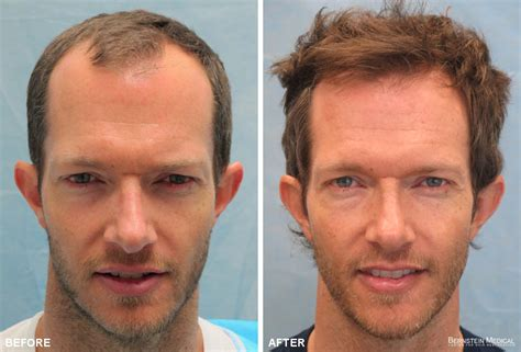 hair transplant patient gkl before after bernstein medical