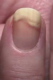 images  nail disorder  pinterest runners