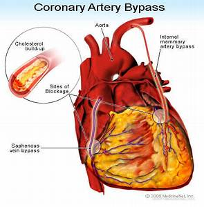 ... done? - What Is Coronary Artery Bypass Graft? Surgery, Grafting Coronary Artery Bypass Graft