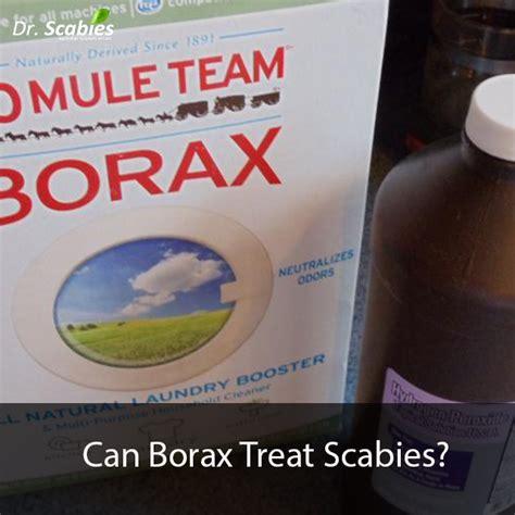 borax treat scabies  scabies treatment dr