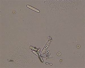Calcium Oxalate Crystals Urine Calcium Oxalate Monohydrate ...