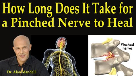 How Long Does It Take For A Pinched Nerve To Heal Dr