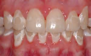 Remove White Spots On Teeth submited images