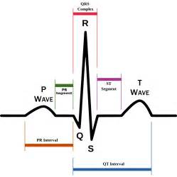 Qr Stands For by Schematic Diagram Of Normal Sinus Rhythm For A Human Heart
