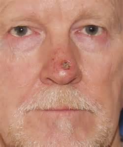 Nose Graft After Skin Cancer