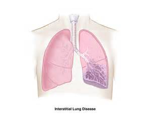 Interstitial Lung Disease – Brigham and Women's Hospital Interstitial lung disease