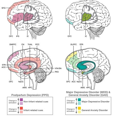 Depression Disorders Postpartum Depression And Anxiety Distinct From Other Mood