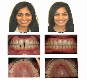 INVISALIGN BEFORE AND AFTER - Resume Templates