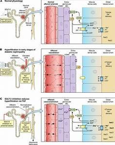 Sodium Glucose Cotransporter 2 Inhibitors In The Treatment