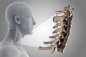 Simple Wedge Fractures In The Cervical Spine