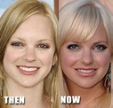 Anna Faris Plastic Surgery Before and After Nose Job ...