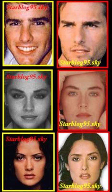 dossier sp 233 cial chirurgie les sans maquillage