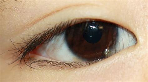 eye disorders  newborn infants excluding retinopathy