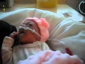 ophelia premature baby born 14 weeks early 576grams - YouTube