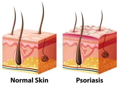 human skin diagram  normal  psoriasis stock vector
