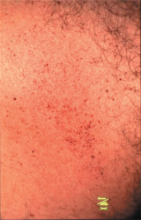 Fabry Disease Diagnosis