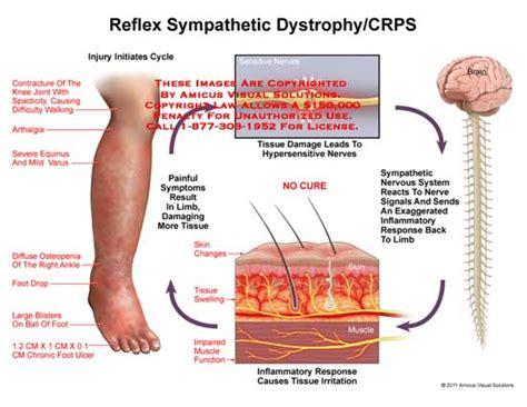 Reflex Sympathetic Dystrophy (rsd)