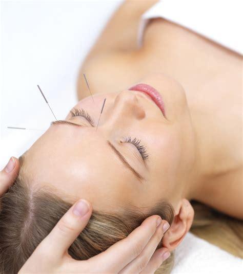 Acupuncture Morden Infertility Pain London South