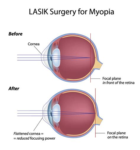 Lasik Eye Surgery For Vision Correction At Fort Worth Eye. Water Damage New Jersey Lawyers In Chicago Il. Certified Provider Credentialing Specialist. Virgo Business Centers Schuyler Middle School. Free Checking Account Arizona. Tingling Numbness In Toes File System Auditor. Vocational Schools In Denver. Real Time Trading Platform Purchase A Website. Software Companies In Coimbatore