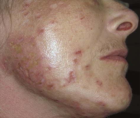 successful treatment  morgellons disease  pimozide