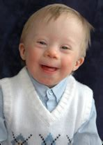 Down syndrome - CreationWiki, the encyclopedia of creation ...