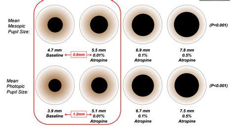 Atropine And Myopia Control The Atom 2 Study Eyedolatry