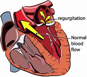 chronic degenerative valve disease stage b1