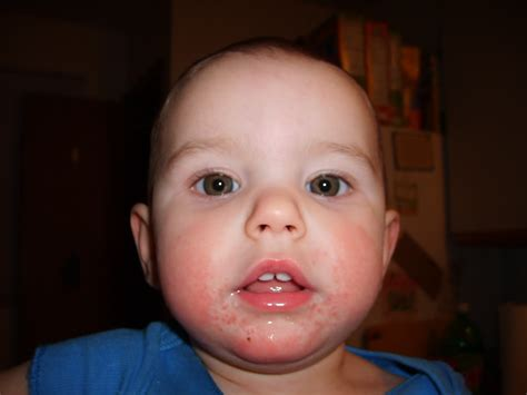 Sudden Milk Allergy In A One Year Old How To Know What It