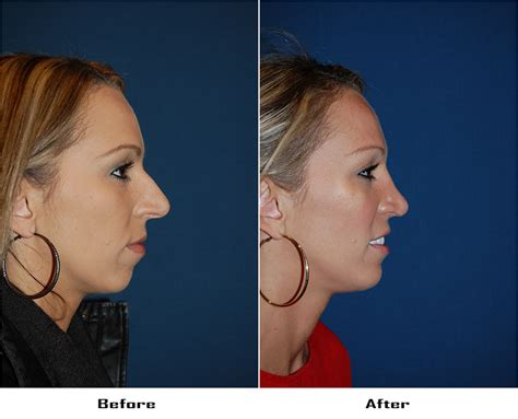 Nose Job Before And After Archives  Best Rhinoplasty In. Stump Grinding Portland Thailand Prepaid Card. Cheap Online Classes For College Credit. Government Procurement Definition. How To Become A Marriage And Family Counselor. Foundation Crack Repairs Selling My Own House. Watch Supernatural Pilot Brochure Printing Uk. Zero Balance Account Agreement. Chicago School Of Performing Arts