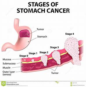 Gastric Cancer And Sections Of Stomach