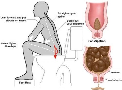 How To Harden Stool - how to when you can t without any laxatives health