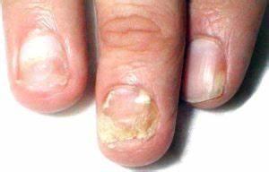 Лечение грибка ногтей лазером цена отзывы