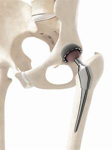 Hip and Knee Services | Joint Implant Surgeons