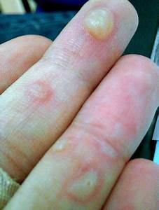 Watery Blisters On Hands