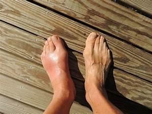 Можно ли греть ноги при гипертонии